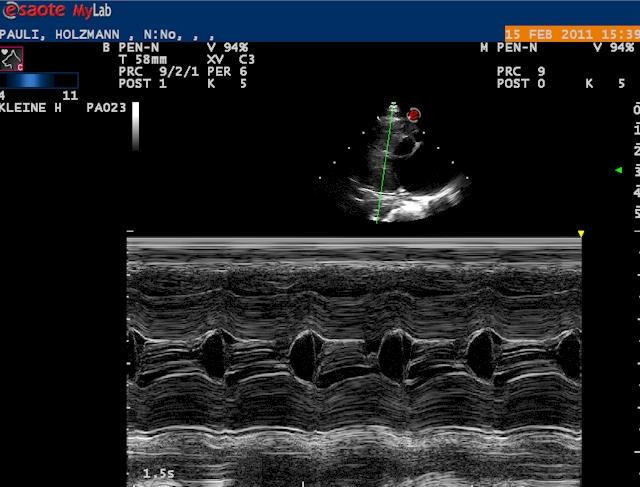 ultrasound-guided corticosteroid injection
