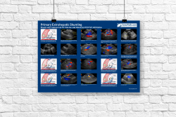 Primary Extrahepatic Shunting Poster