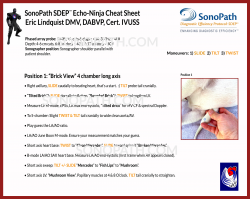 SDEP ECHO Scanning Tips Card SIDE A