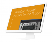 """Working Through Ascites By The Probe"""
